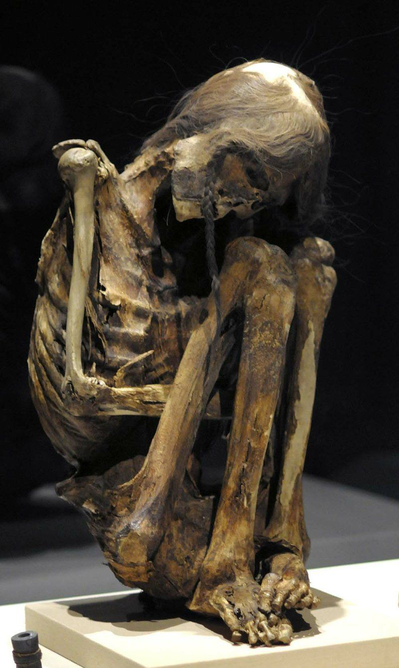 Mummies Of The World Caal20 T800 Epide